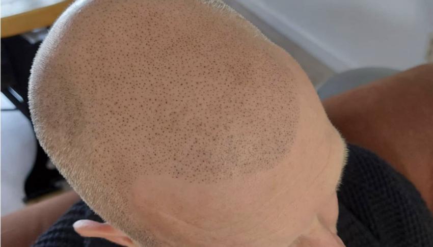 Micro haar pigmentatie hellevoetsluis